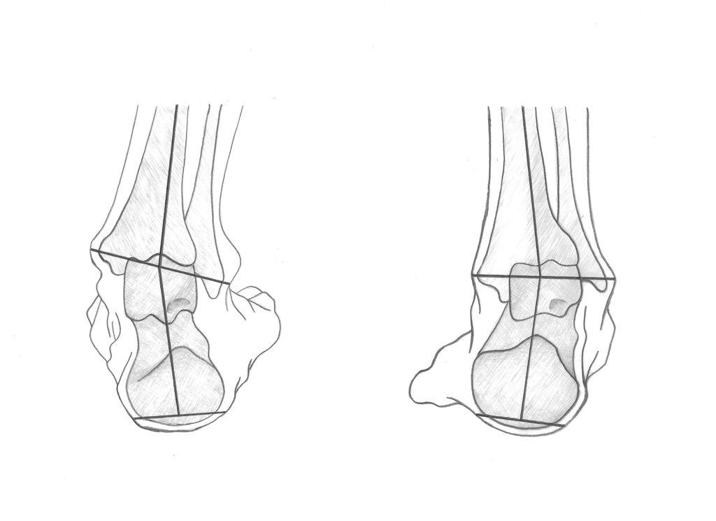 Lunge berät: Der menschliche Fuß